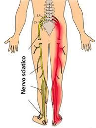 mal di schiena di origine ascendente